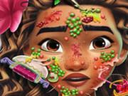 Игра Лечение Кожи Принцессы Моаны